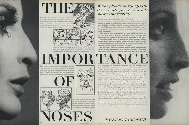 The Importance of Noses