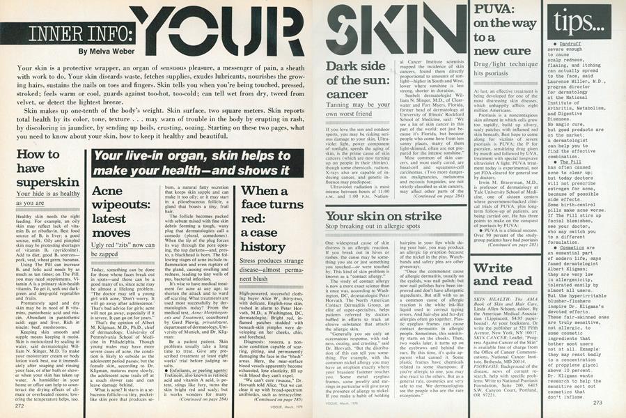 Inner Info: Your Skin